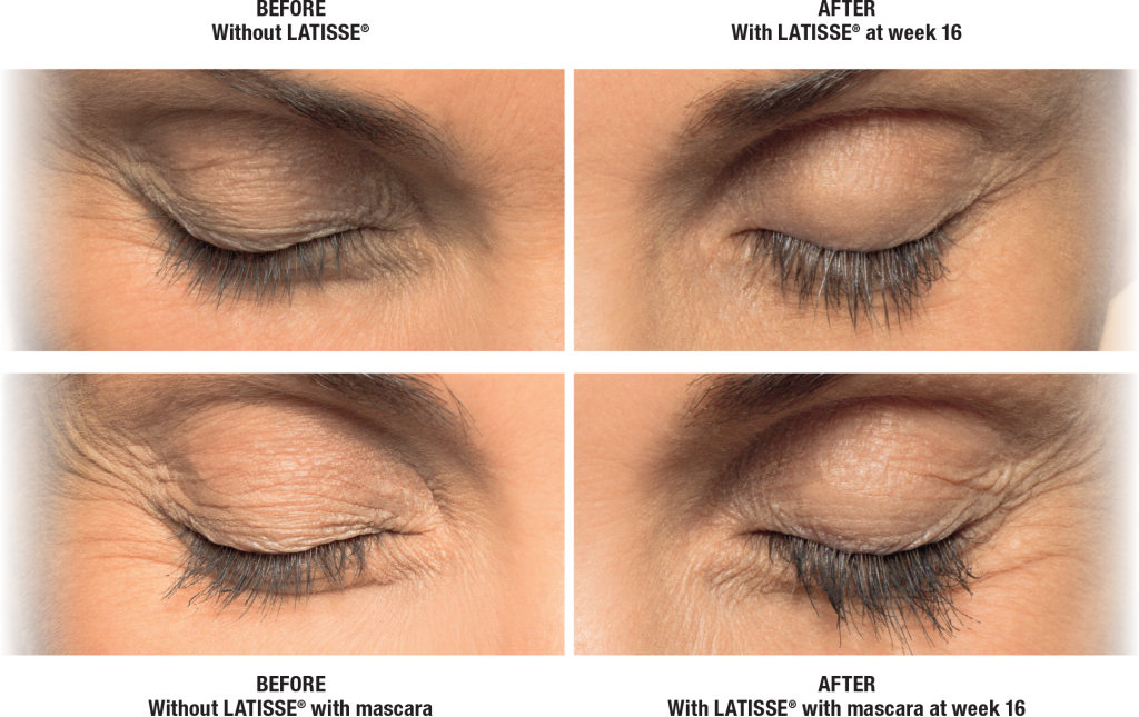 Patient before and after Latisse result with eyes close