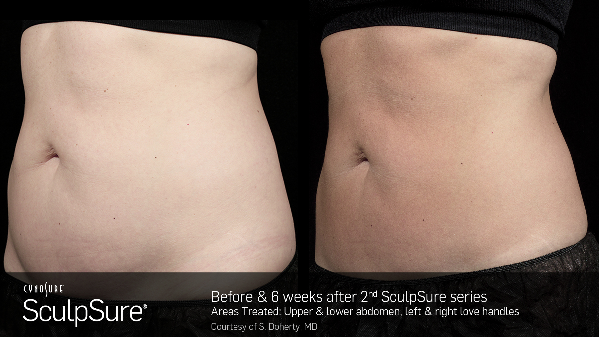CynoSure SculpSure patient after 2nd sculpsure series
