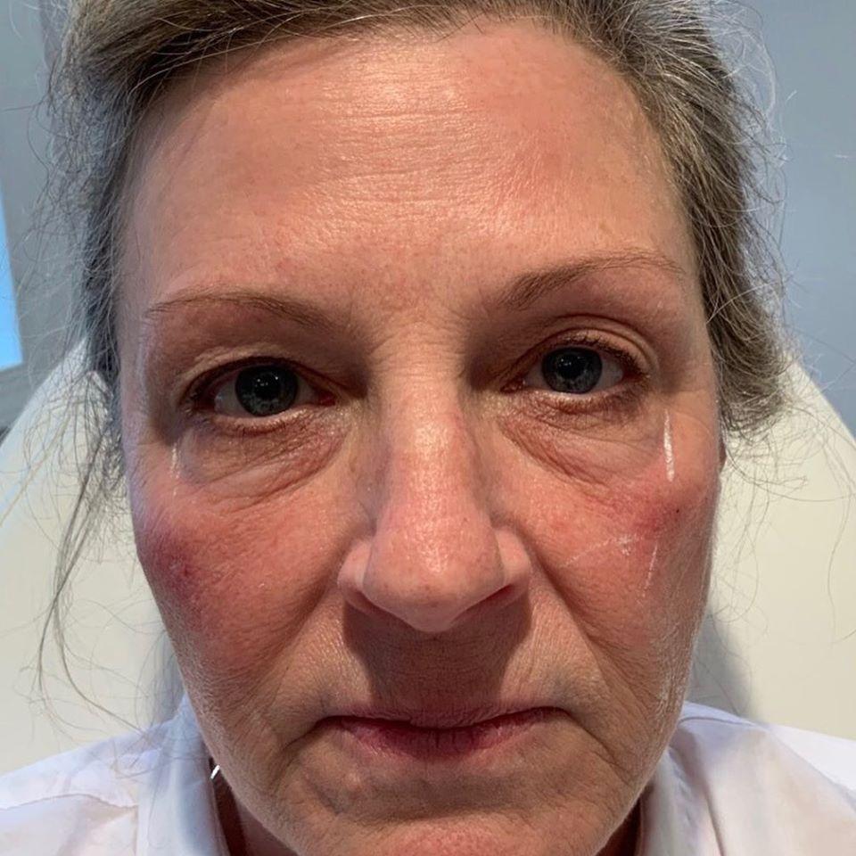 Bella Derma patient before Facial Filler