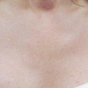 Bella Derma patient after Skin Revitalization