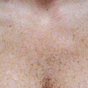 Bella Derma patient before Skin Revitalization